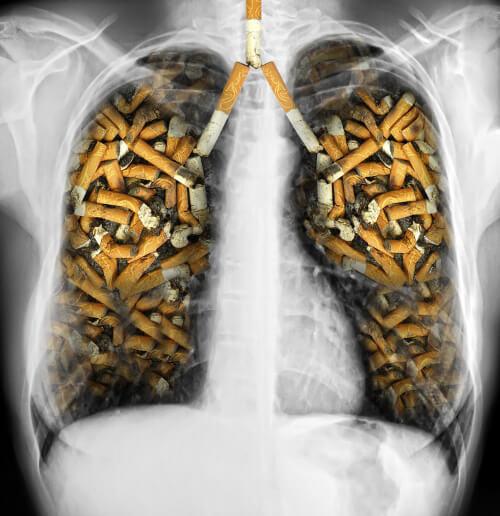 Sigara ve Ciğerler